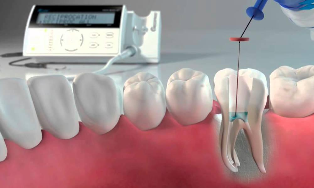 Endodontia OralSmile