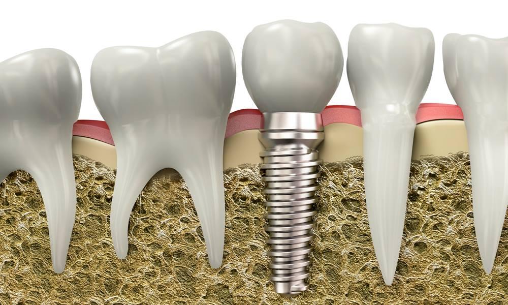 Implantologia OralSmile