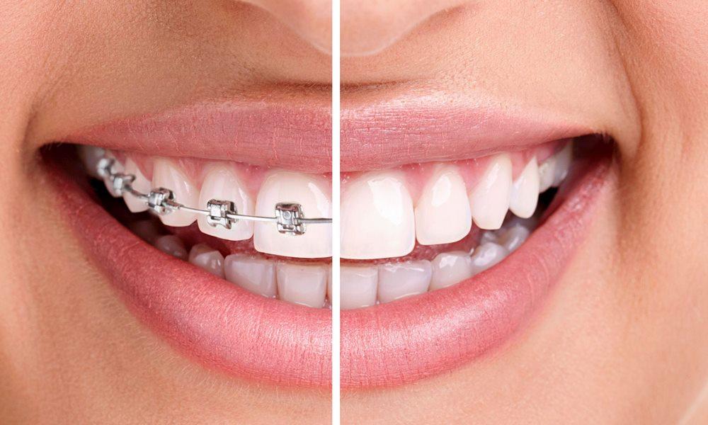Ortodontia OralSmile