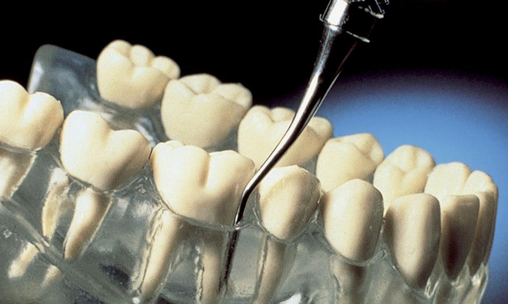 Periodontologia OralSmile